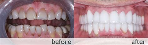 Dental Implant Beverly Hills » Full Mouth Reconstruction